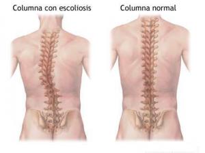 escoliosis[1]